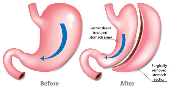 bariatric surgery cost singapore